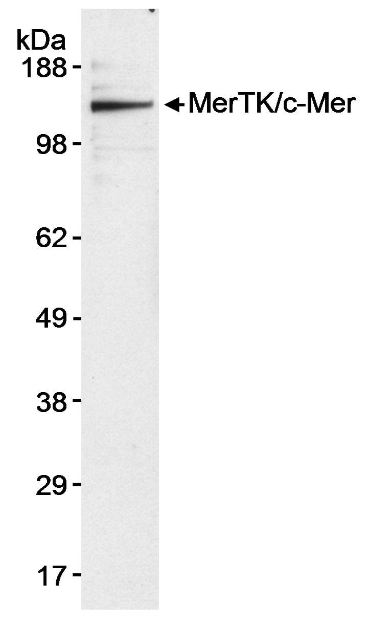 MerTK/c-mer Antibody in Western Blot (WB)