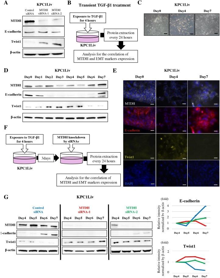 Metadherin Antibody in Western Blot, Immunocytochemistry (WB, ICC/IF)