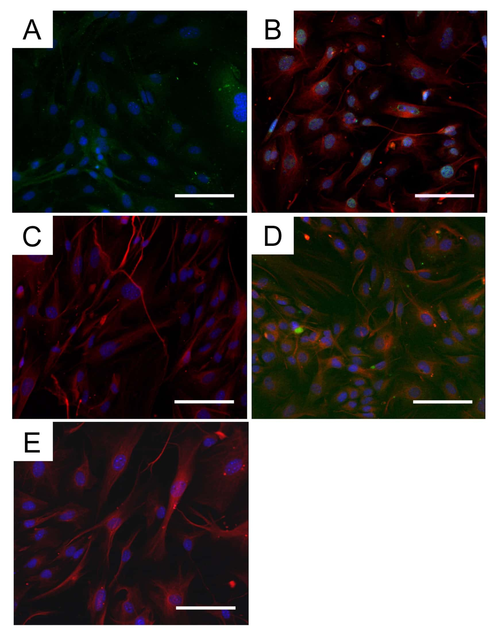 Myosin 4 Antibody