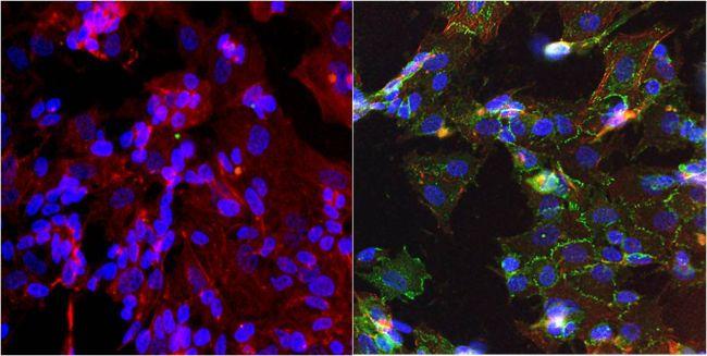 N-cadherin Antibody in Immunofluorescence (IF)