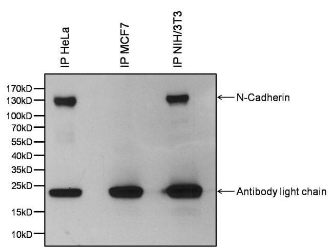 N-cadherin Antibody in Immunoprecipitation (IP)