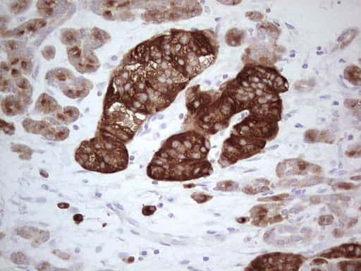 N4BP2L2 Antibody in Immunohistochemistry (Paraffin) (IHC (P))