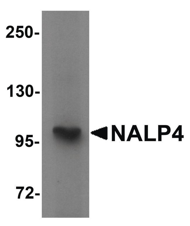 NALP4 Antibody in Western Blot (WB)