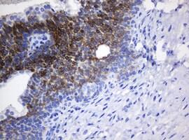 NANP Antibody in Immunohistochemistry (Paraffin) (IHC (P))