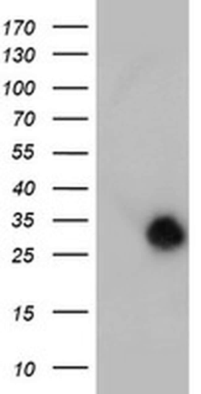 NANP Antibody in Western Blot (WB)