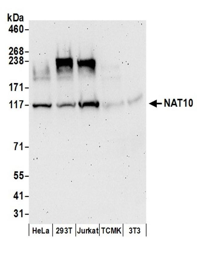 NAT10 Antibody in Western Blot (WB)