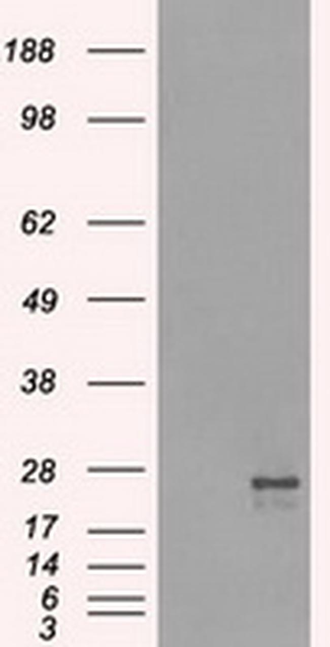NAT8 Antibody in Western Blot (WB)