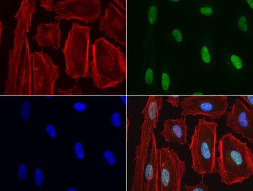 NBN Antibody in Immunofluorescence (IF)
