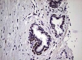 NBN Antibody in Immunohistochemistry (Paraffin) (IHC (P))