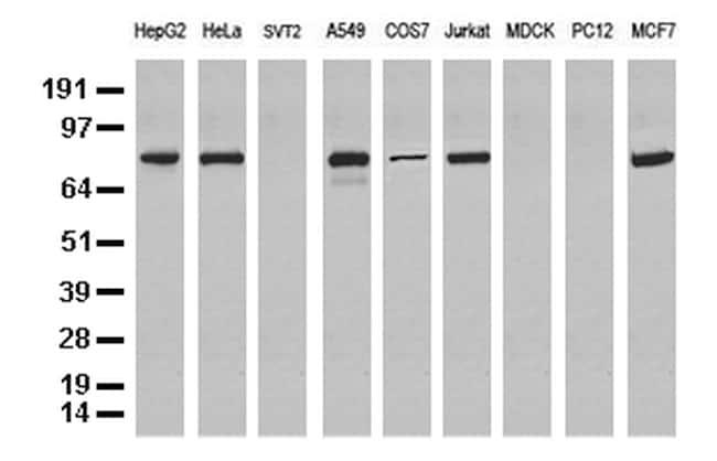 NBN Antibody in Western Blot (WB)