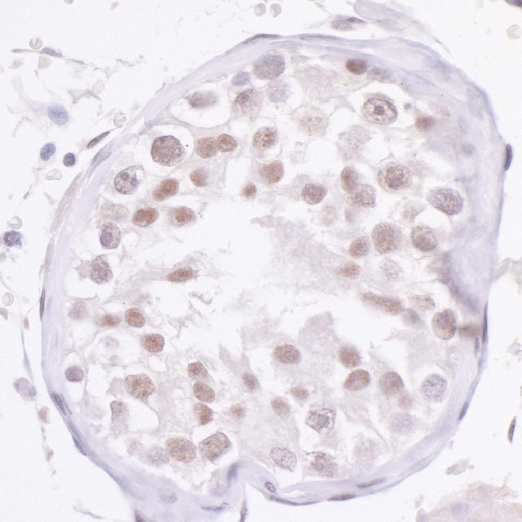 NCOA2/SRC2 Antibody in Immunohistochemistry (IHC)