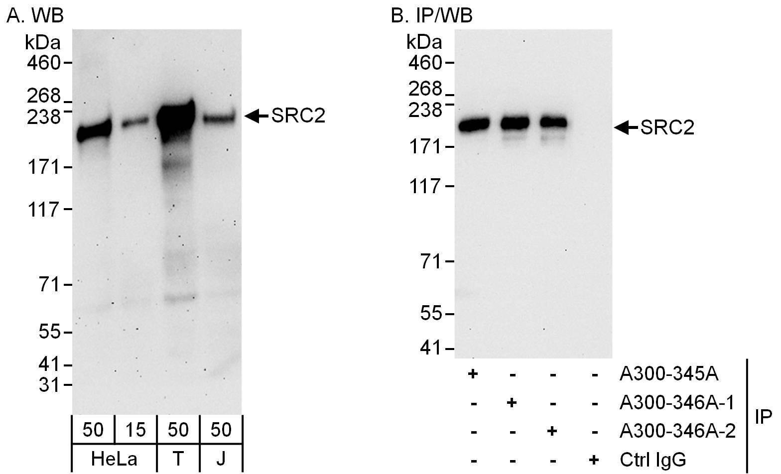 NCOA2/SRC2 Antibody in Western Blot (WB)