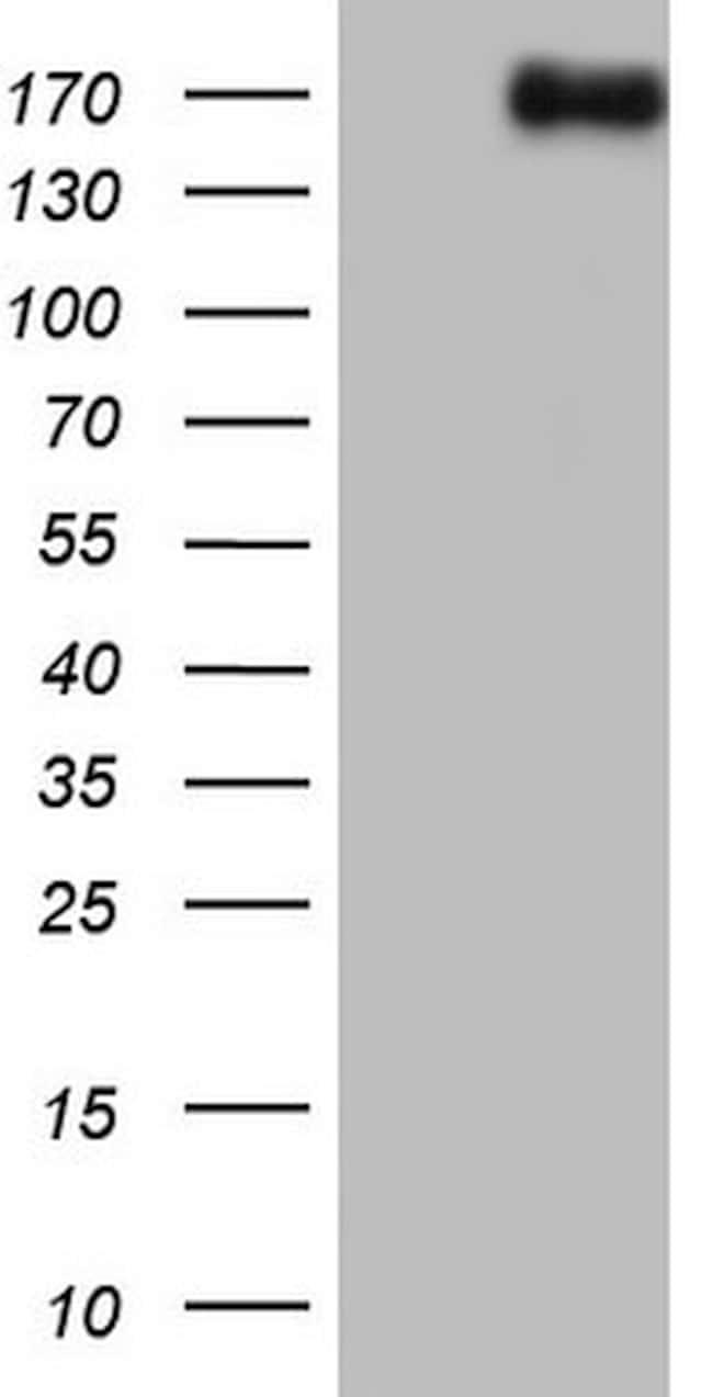 NCOA2 Antibody in Western Blot (WB)