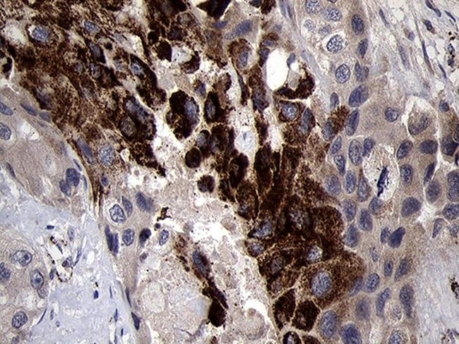 NDUFA4L2 Antibody in Immunohistochemistry (Paraffin) (IHC (P))