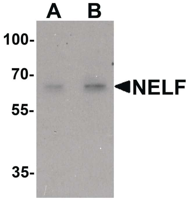 NELF Antibody in Western Blot (WB)