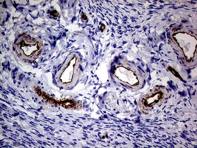NES Antibody in Immunohistochemistry (Paraffin) (IHC (P))