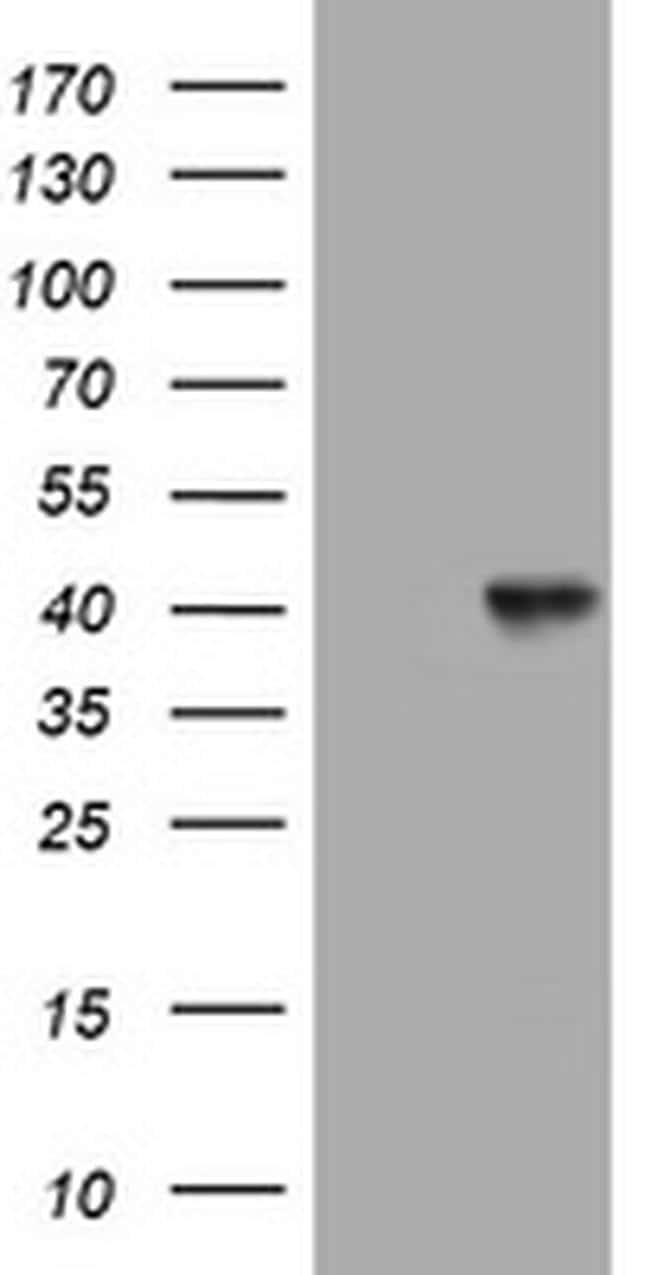 NEU1 Antibody in Western Blot (WB)