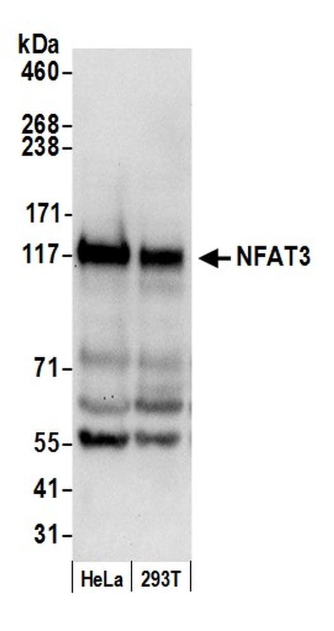 NFAT3 Antibody in Western Blot (WB)