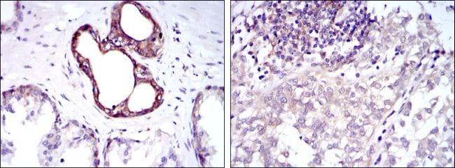 NFkB p50 Antibody in Immunohistochemistry (IHC)