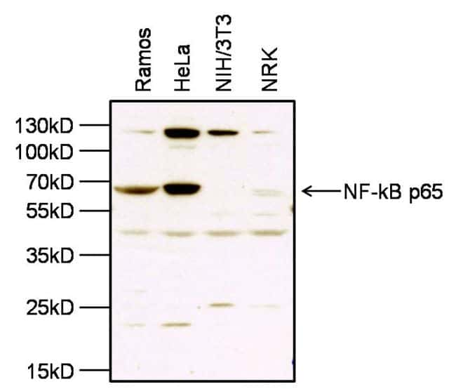 NFkB p65 Antibody in Western Blot (WB)