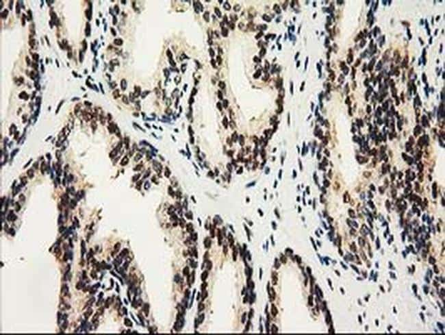 NHEJ1 Antibody in Immunohistochemistry (Paraffin) (IHC (P))
