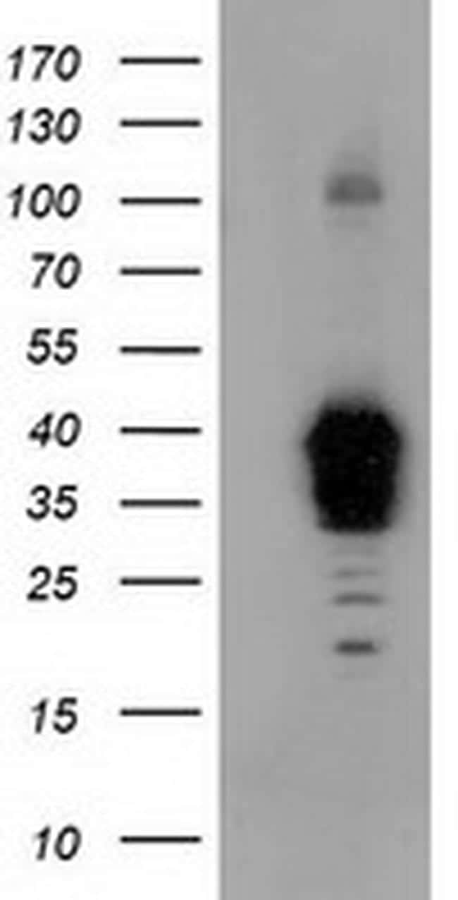 NHEJ1 Antibody in Western Blot (WB)