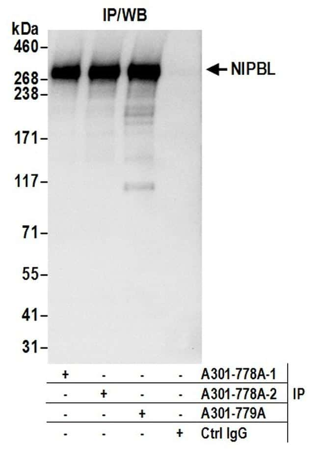 NIPBL Antibody in Immunoprecipitation (IP)