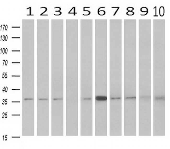 NIT1 Antibody in Western Blot (WB)