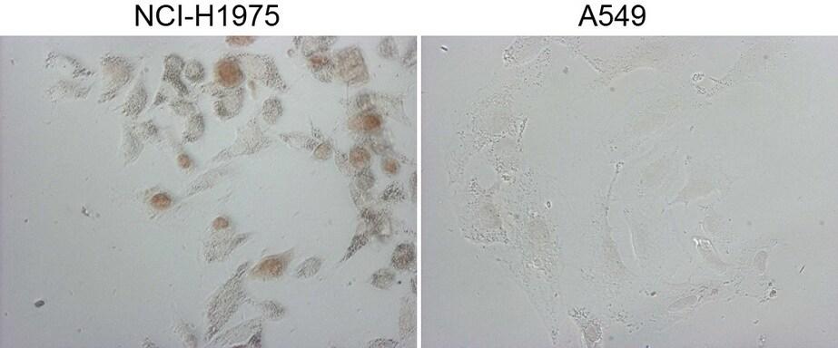 NKX2 Antibody in Immunocytochemistry (ICC/IF)