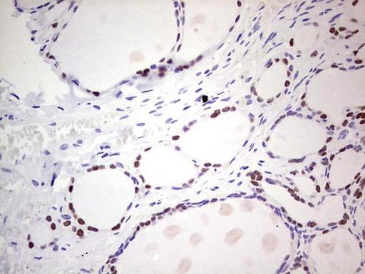 NKX2 Antibody in Immunohistochemistry (Paraffin) (IHC (P))