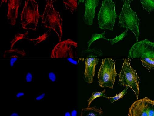 NME1 Antibody in Immunofluorescence (IF)
