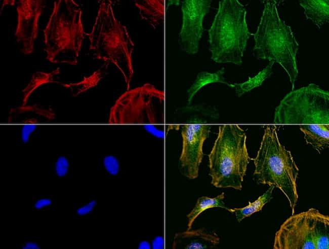 NME1 Antibody in Immunocytochemistry (ICC/IF)