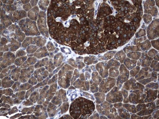 NME1 Antibody in Immunohistochemistry (Paraffin) (IHC (P))