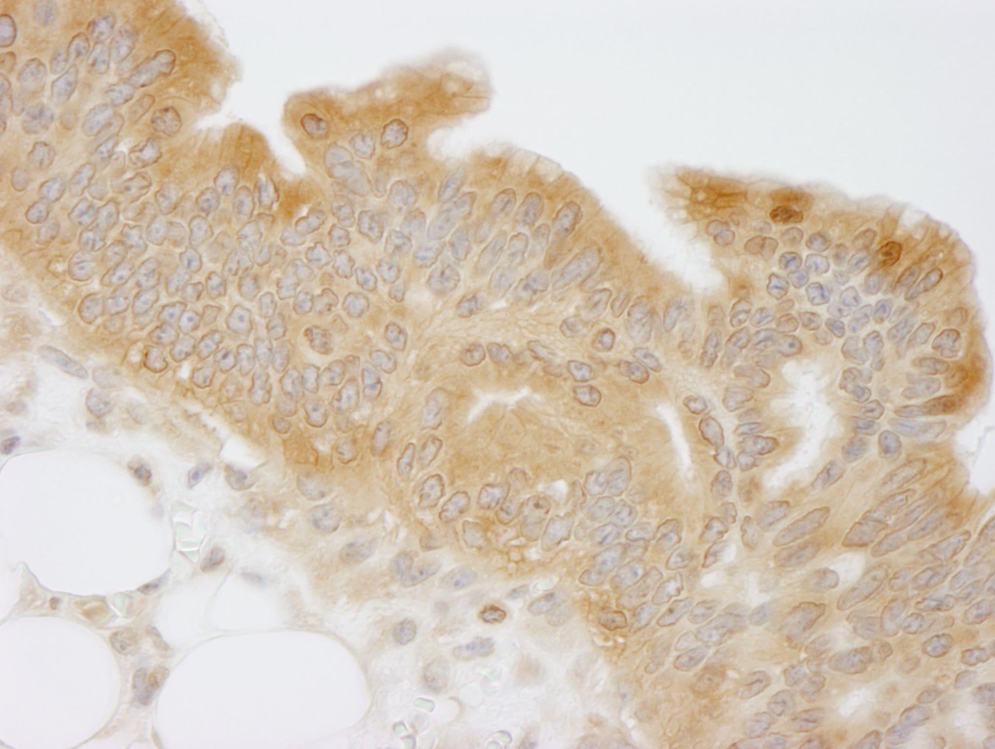 NMI Antibody in Immunohistochemistry (IHC)