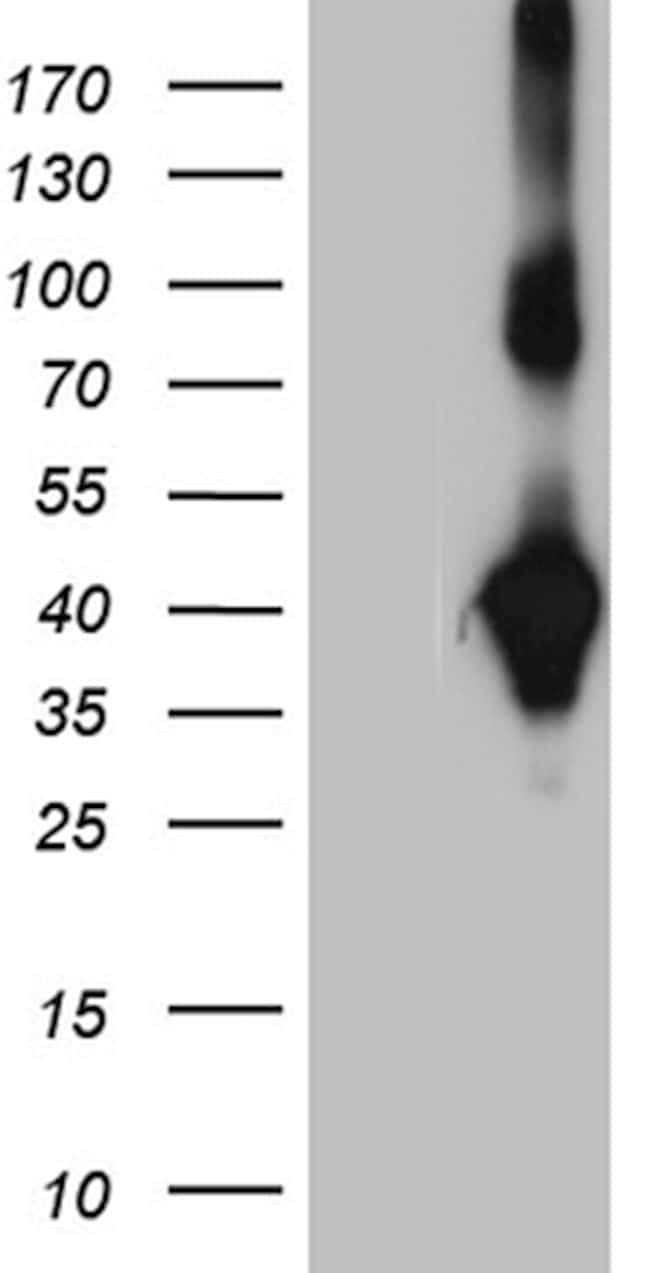 NMI Antibody in Western Blot (WB)