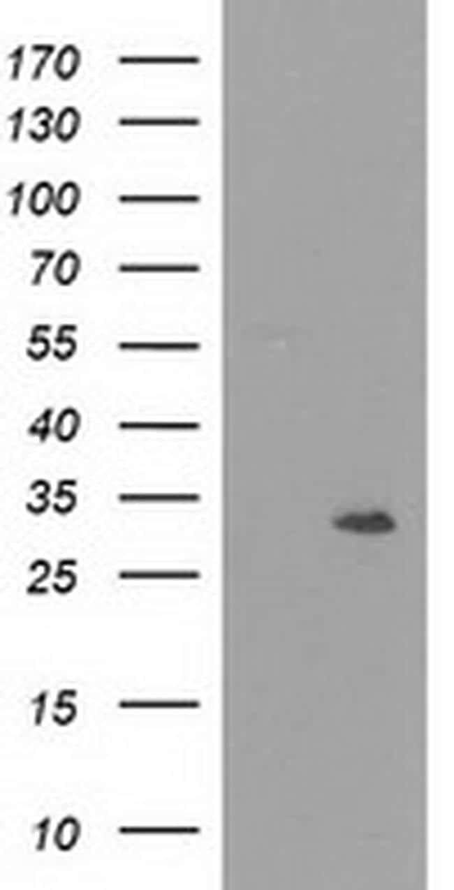 NMNAT1 Antibody in Western Blot (WB)