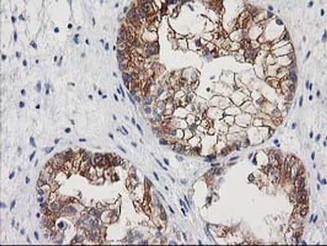 NNMT Antibody in Immunohistochemistry (Paraffin) (IHC (P))