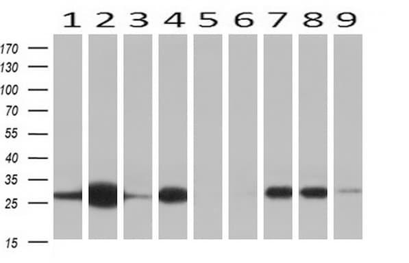 NNMT Antibody in Western Blot (WB)