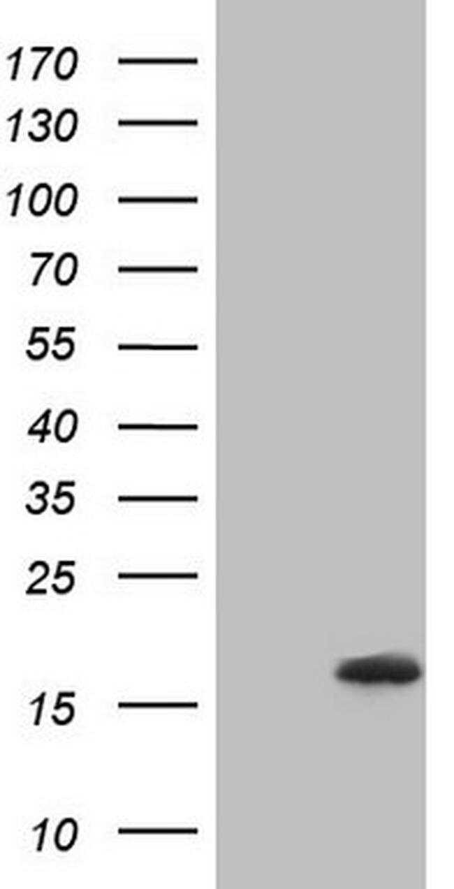 NPPB Antibody in Western Blot (WB)