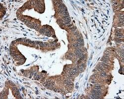 NPR3 Antibody in Immunohistochemistry (Paraffin) (IHC (P))