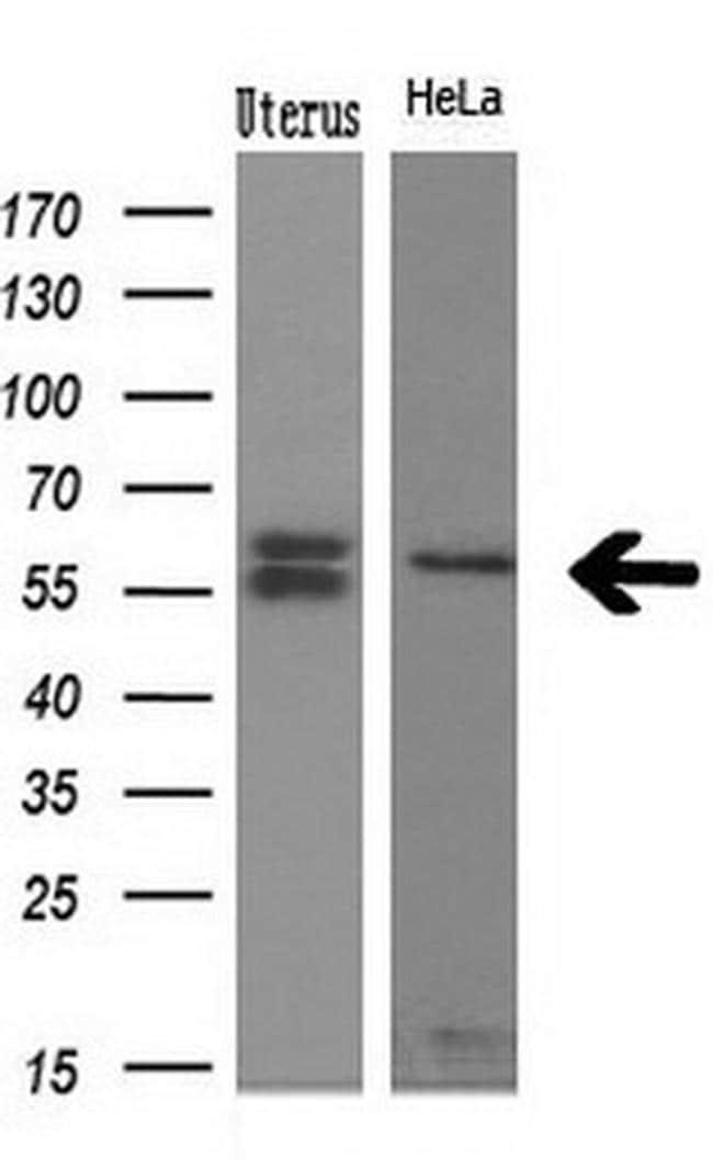 NPR3 Antibody in Western Blot (WB)