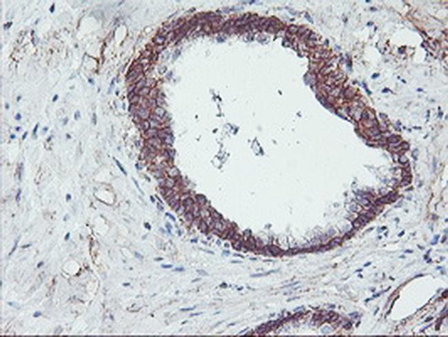 NPTN Antibody in Immunohistochemistry (Paraffin) (IHC (P))