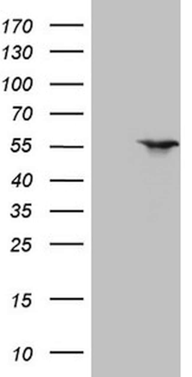 NR1H3 Antibody in Western Blot (WB)