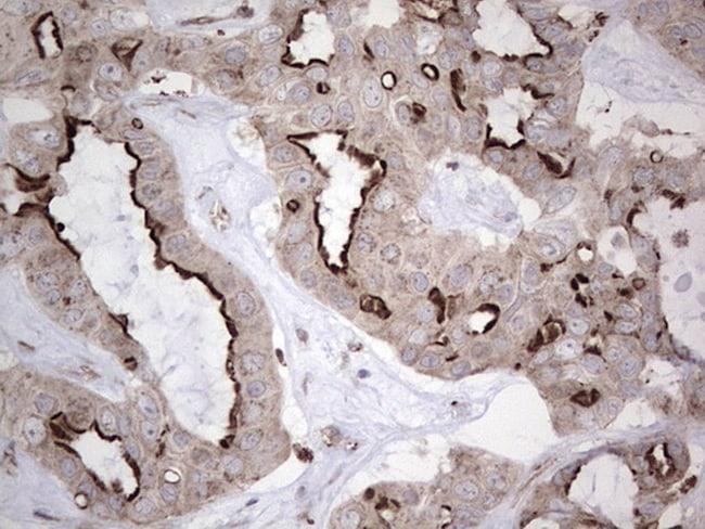 NR1I3 Antibody in Immunohistochemistry (Paraffin) (IHC (P))