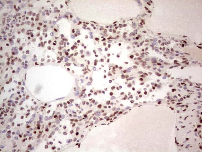NR3C1 Antibody in Immunohistochemistry (Paraffin) (IHC (P))