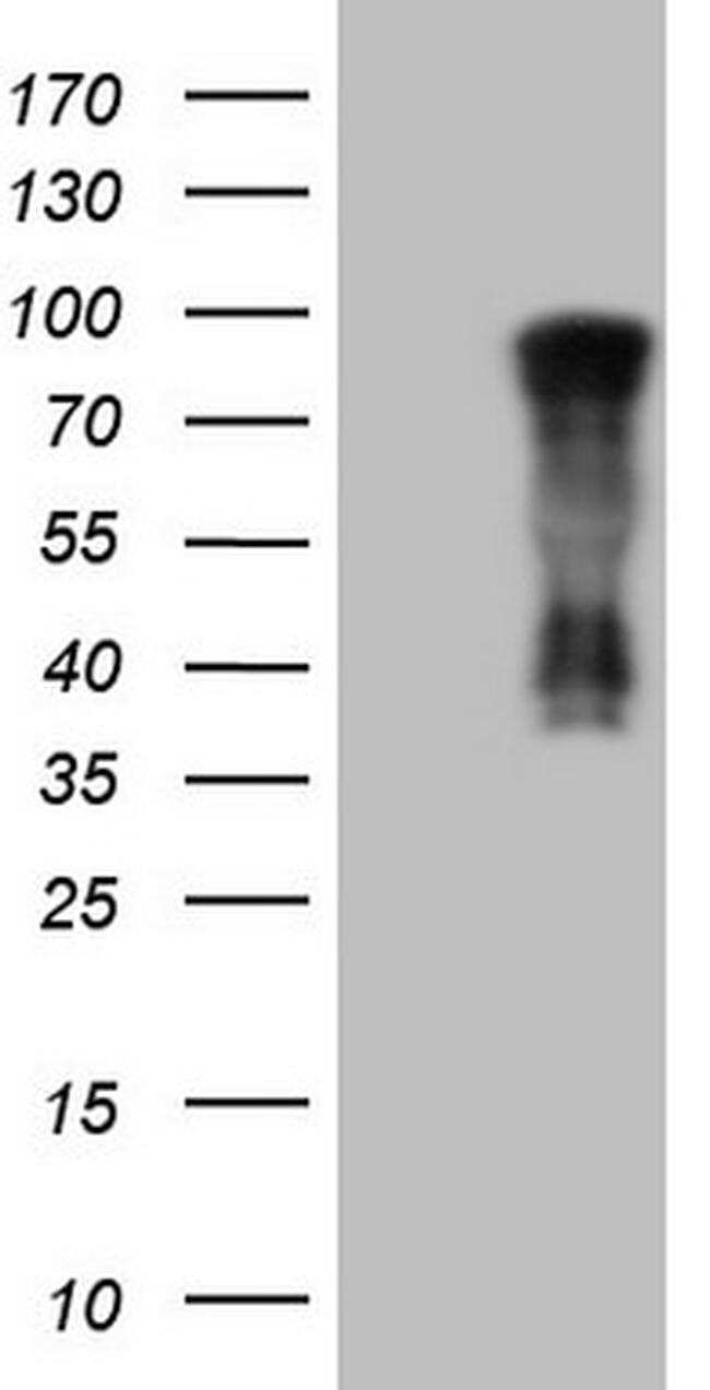 NR3C1 Antibody in Western Blot (WB)