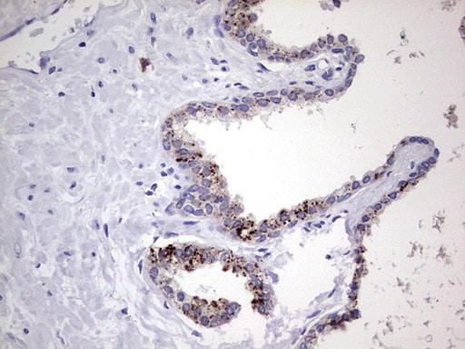 NR4A3 Antibody in Immunohistochemistry (Paraffin) (IHC (P))