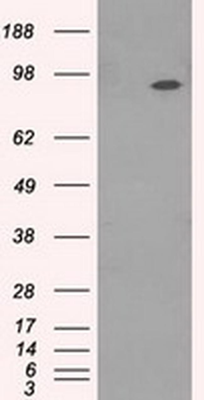 NTRK3 Antibody in Western Blot (WB)
