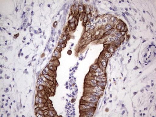 NUDT12 Antibody in Immunohistochemistry (Paraffin) (IHC (P))