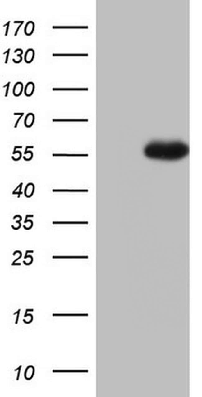 NUDT12 Antibody in Western Blot (WB)